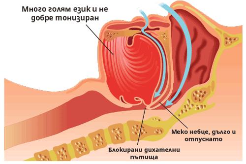 Блокирани дихателни пътища